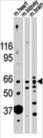 PAB2022 - Activin receptor type 2B / ACVR2B