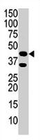 PAB2036 - Phosphoglycerate kinase 1 (PGK1)