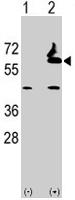 PAB2090 - Alpha-L-fucosidase 2 / FUCA2