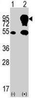PAB2106 - B-Raf proto-oncogene