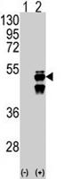 PAB2155 - Protein phosphatase 1F / PPM1F