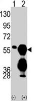PAB2156 - Protein phosphatase 1F / PPM1F