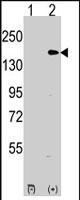 PAB2181 - EHMT1
