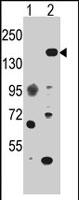 PAB2182 - EHMT1