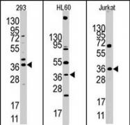 PAB2198 - HIF1AN / FIH1