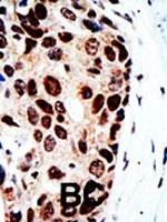 PAB2339 - HDAC9