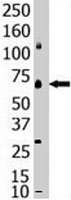 PAB2412 - SENP1