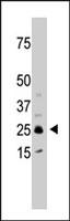 PAB2526 - SULT1C2 / SULT1C1
