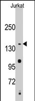 PAB2537 - SMC2 / CAPE