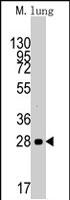 PAB2538 - Cyclin D1