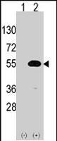 PAB2545 - NR0B1