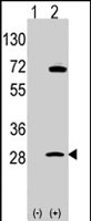 PAB2547 - Prohibitin / PHB