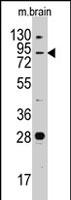 PAB2555 - Junctophilin-3 / JPH3