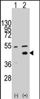 PAB2563 - WIF1