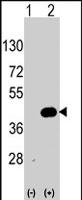 PAB2564 - WIF1