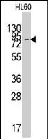 PAB2599 - SLC16A1