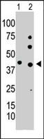 PAB2618 - Phosphoglycerate kinase 1 (PGK1)