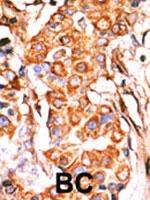 PAB2680 - Glycerol kinase 2