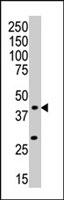 PAB2785 - MAP kinase p38 beta / MAPK11