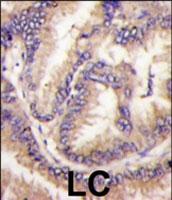 PAB2814 - CDKL5 / STK9