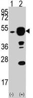 PAB2836 - EIF4A1