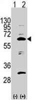 PAB2845 - APPBP1