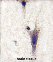 PAB2857 - LINGO1