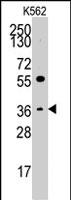 PAB2956 - Thrombopoietin