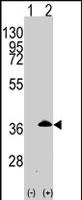 PAB2987 - Apolipoprotein E / Apo E
