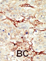 PAB3043 - CD333 / FGFR3