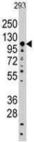 PAB3156 - Sal-like protein 4 (SALL4)