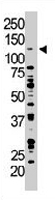 PAB3265 - DAG kinase zeta