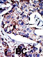 PAB3346 - DAG kinase delta