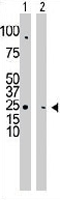 PAB3352 - CMPK1