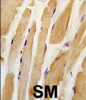 PAB3355 - Integrin-linked protein kinase