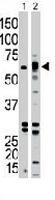 PAB3467 - Activin receptor type 1B / ACVR1B