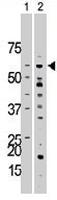 PAB3474 - Activin receptor type 1 / ACRV1