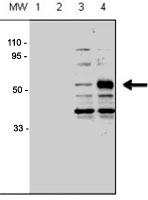 PAB3475 - ACVRL1 / ALK1