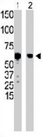 PAB3531 - Glucokinase / Hexokinase-4
