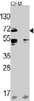 PAB3544 - CD282 / TLR2