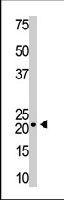 PAB3604 - Visinin-like protein 1 / HLP3