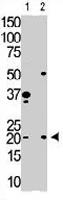 PAB3607 - HPCA / Hippocalcin
