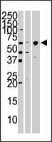 PAB3804 - KPNA4 / Importin alpha-4