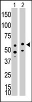 PAB3834 - CD292 / BMPR1A