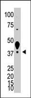 PAB3847 - LYVE-1