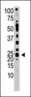 PAB3871 - TDGF1 / CRIPTO