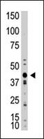 PAB3887 - Myostatin