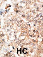 PAB3924 - Osteocalcin