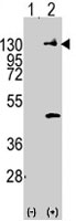 PAB3935 - CD140a / PDGFRA