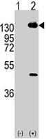 PAB3938 - CD140a / PDGFRA